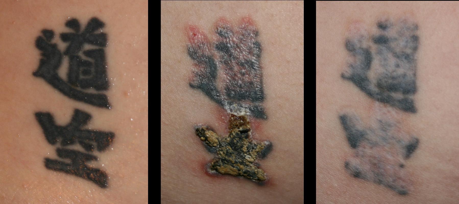 Как свести татуировку? - protectionliferu